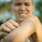 Sinek ve Böcek Sokmaları Enfeksiyonlara Yol Açabilir